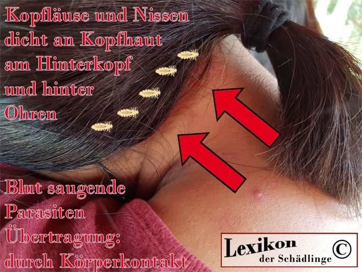 Frauenkopf, Kopfläuse und Nissen
